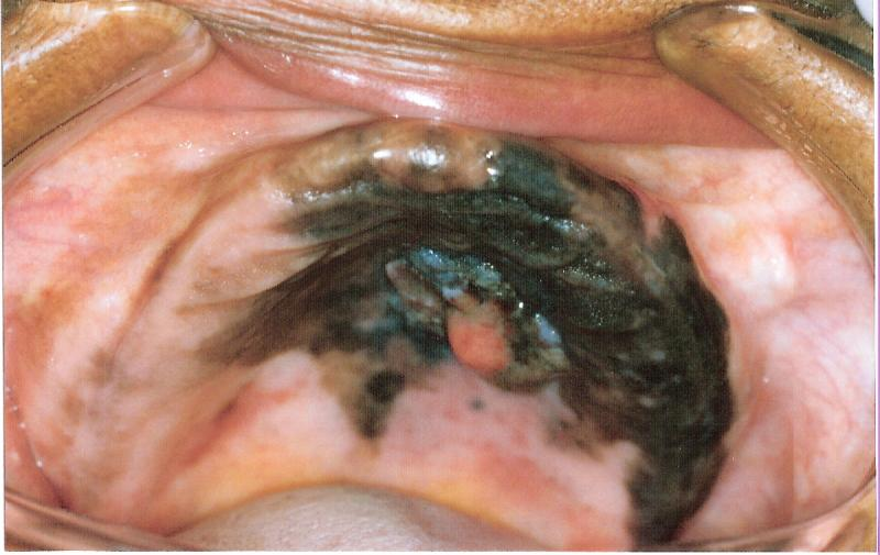 acral melanomas #10