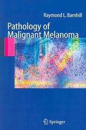 barnhill book on melanoma