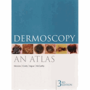 Dermoscopy Atlas